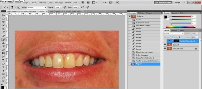 Comment blanchir des dents rapidement